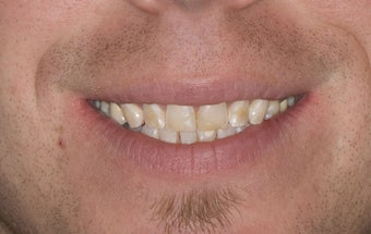Composite Bonding and Porcelain Crowns