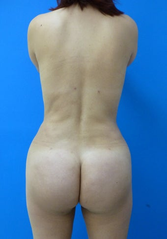 Brazilian Butt Lift after 367224