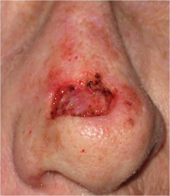 Mohs surgery defect of dorsum of the nose before 82513