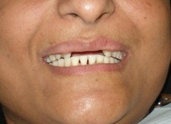 Cosmetic Dentistry Fixed Prosthesis before 254543