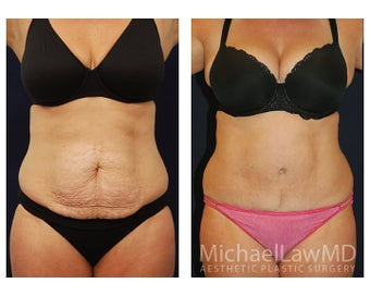 Abdominoplasty - Tummy Tuck before 396176