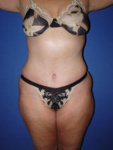 Abdominoplasty surgery after 119463