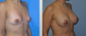 Breast Augmentation  before 256385