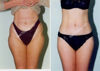 Liposuction before 242850