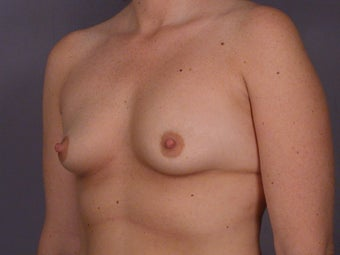 Circumareolar Breast Lift with Breast Implants before 309738