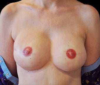 Breast reconstruction with silicone implants after 476705