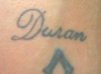 Laser tattoo removal before 374516