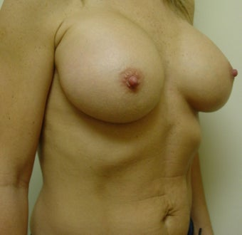 Breast Augmentation Transaxillary after 316997