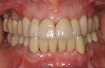 Smile makeover/full mouth reconstruction 318865