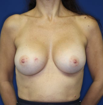 Breast Implants after 381816