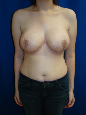 Breast reduction after 103148