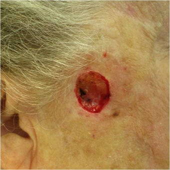 Closure of Mohs Surgery Defect before 82499