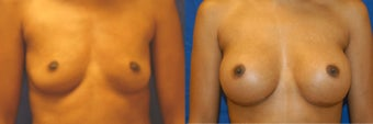 Breast augmentation with silicone breast implants before 143280