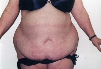 Tummy Tuck before 215129