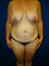 Breast Reduction, Tummy Tuck (Abdominoplasty), Mommy Makeover before 404137