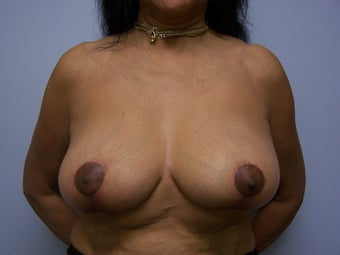 Breast implant removal and breast lift after 589930