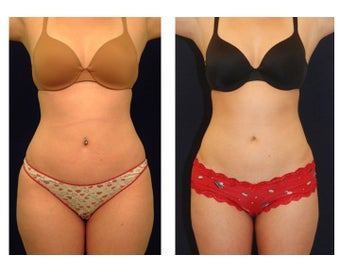 Liposuction before 286744