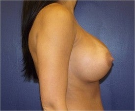 Breast augmentation 592886