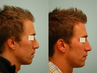 Revision/Corrective Rhinoplasty before 136570