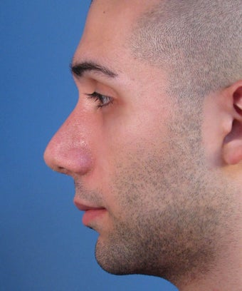 Revision Rhinoplasty 410801