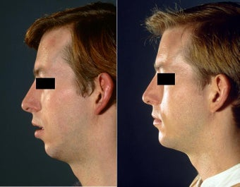 Chin Implant surgery before 519719
