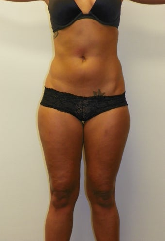 SMARTLIPO MPX before 235398