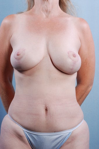 Mastopexy/Lift after 240904