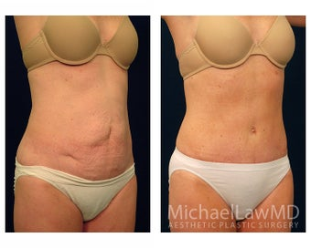 Abdominoplasty - Tummy Tuck after 396132