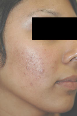 Laser Acne Treatment after 82974