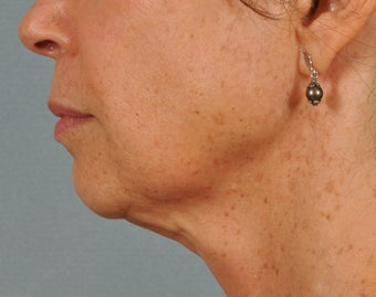 Ultherapy ~ lifting AND tightening for facelift results. before 284065