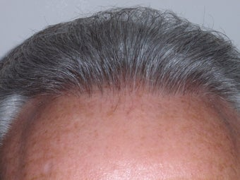 Hair Transplant after 338434