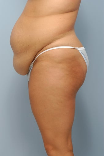 Tummy Tuck before 367308
