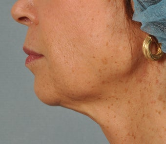 Ultherapy ~ lifting AND tightening for facelift results. after 284065
