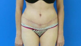 Tummy Tuck after 567619