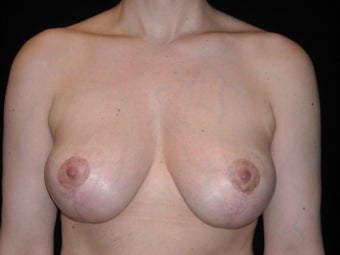 Vertical breast lift after 307431