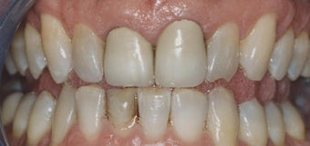 Dental Crowns and Teeth Whitening before 485403