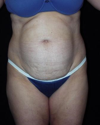 Tummy Tuck with muscle repair before 392082