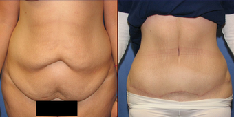 Tummy Tuck before 73801