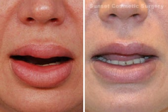Lip Reduction and Repair 485284