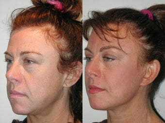 Minifacelift  Blepharoplasty before 137755