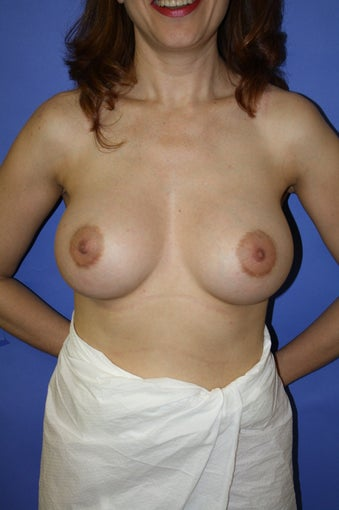 Bilateral breast augmentation after 306452