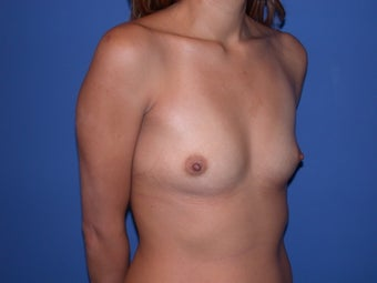 Before and After Breast Augmentation before 56186