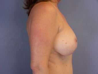 BREAST LIFT/ BREAST AUGMENTATION after 280030