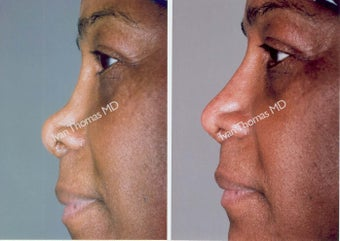 Non-Surgical Rhinoplasty before 243652