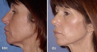 Threadlift for neck and jaw definition before 6820