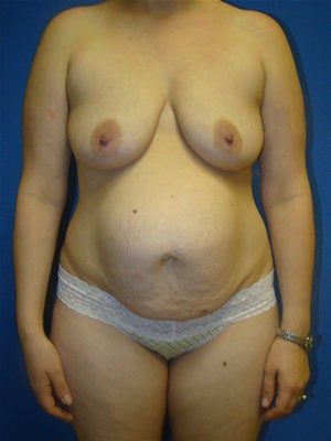 Breast Augmentation Surgery with Breast Lift before 123607