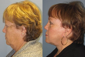 Lite Lift, liposuction of the neck, eyelid lift, brow lift