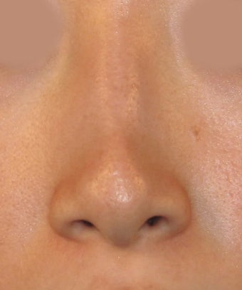 Revision Rhinoplasty before 410604