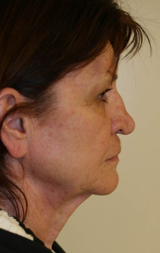 Facelift and Rhinoplasty before 216690