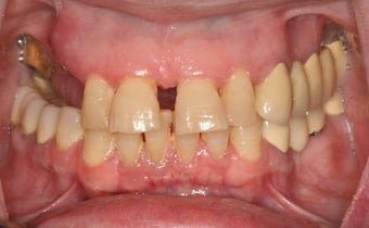 Full Mouth reconstruction, Smile makeover 559122